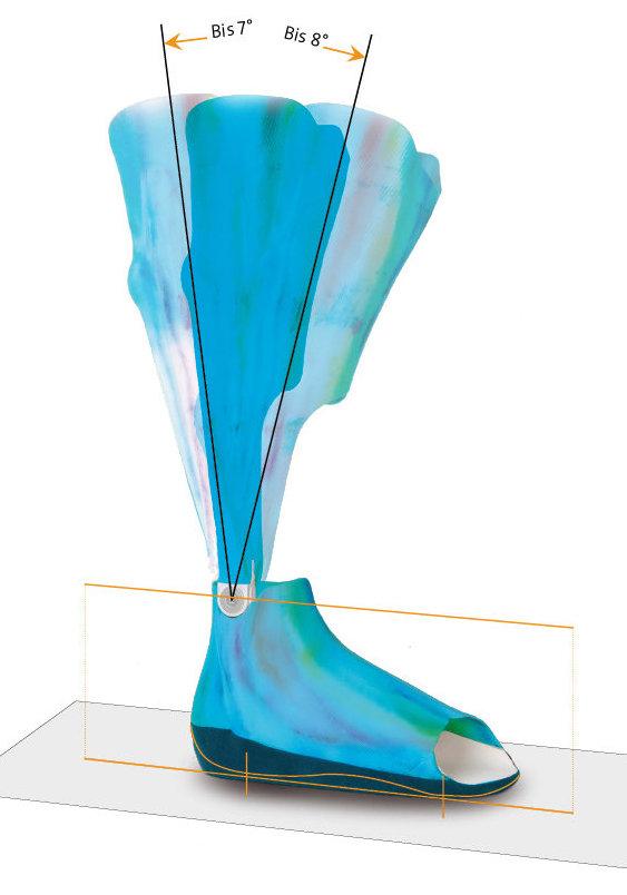 SPRINTER Knöchelgelenk (Aluminium)